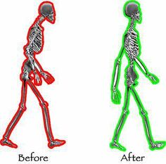 pilates-before-after